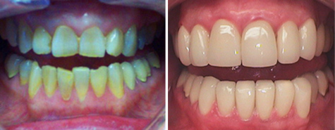 Twenty porcelain fused to metal crowns to restore and revitalize this smile.
