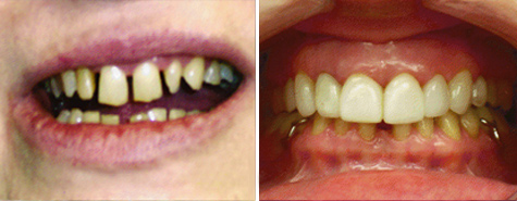 Twelve porcelain veneers to restore a smile with excessive spacing.