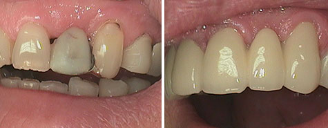 Crown and bridgework before and after