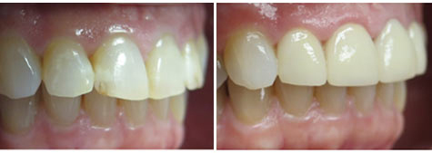 Four e.max metal free crowns