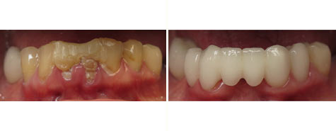 Seven decayed and damaged teeth restored with e.max metal free crowns and bridgework