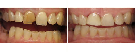 Right front tooth restored with e.max all porcelain crown
