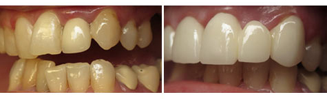 E.max crowns and bridgework