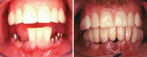 Three natural teeth replaced by fixed twelve unit implant supported bridge