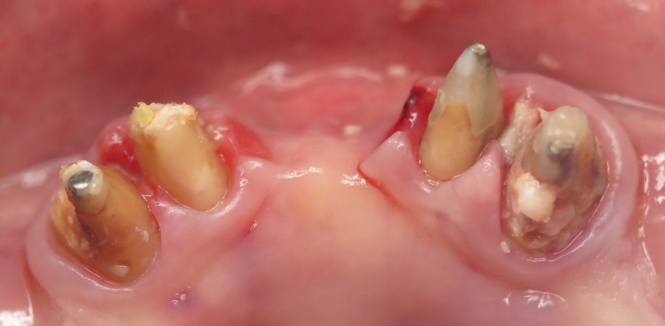 hard tissue grafting socket or ridge preservation