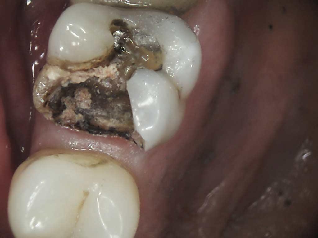 broken tooth under crown