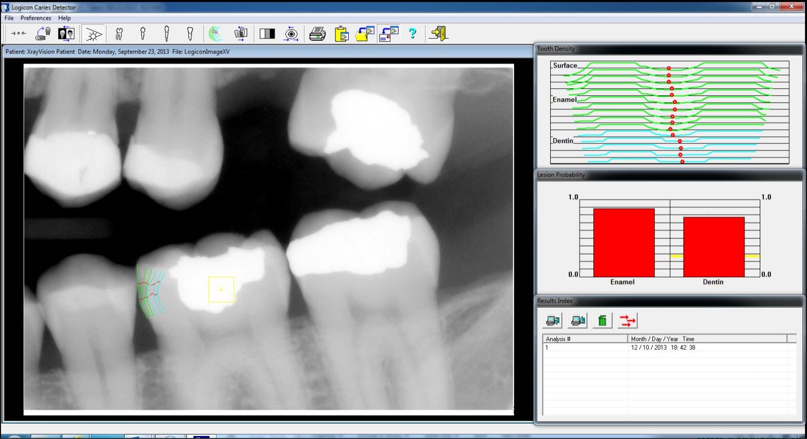 Logicon caries detection software analyzes the decay to penetrate through enamel into softer tooth structure.  Let's look at the clinical case photos to follow the appointment's result