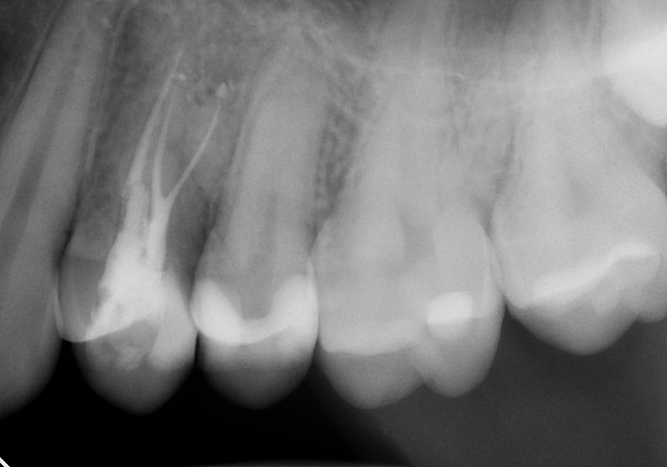 Uncharacteristic bifurcated roots (middle root appearring like forked tongue) are filled with precision with warm root canal filling technique.